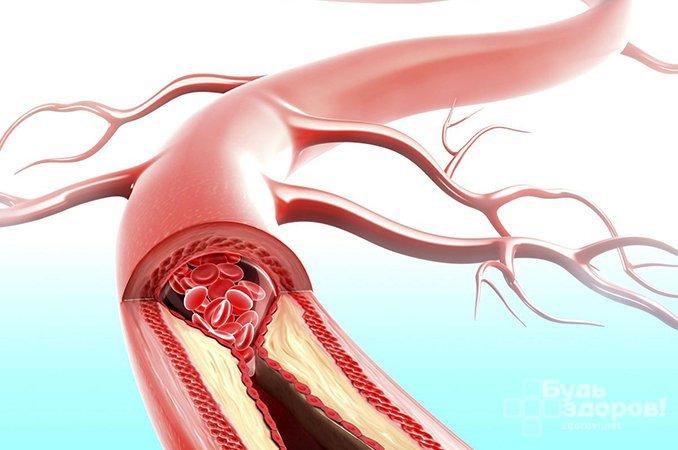 Микроангиопатия - поражение мелких кровеносных сосудов