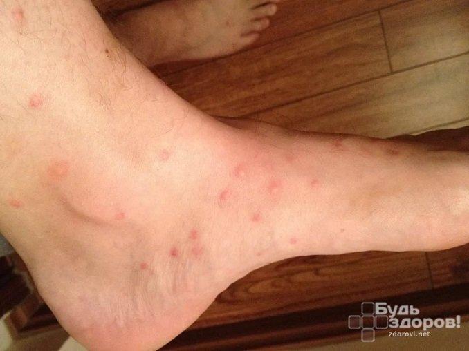 Следы от укусов – сигнал того, что в доме появились блохи