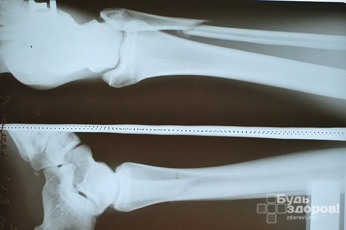Перелом малой берцовой кости - травма нижних конечностей