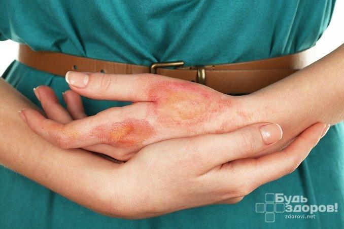 При ожогах уровень лейкоцитов в крови возрастает