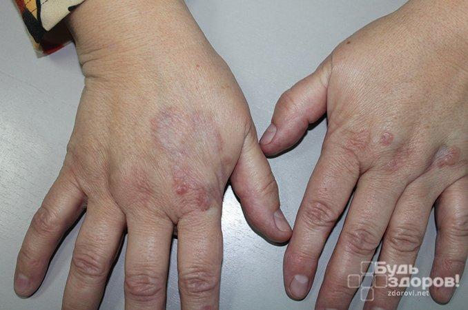 Кольцевидная гранулема - хронический дерматоз