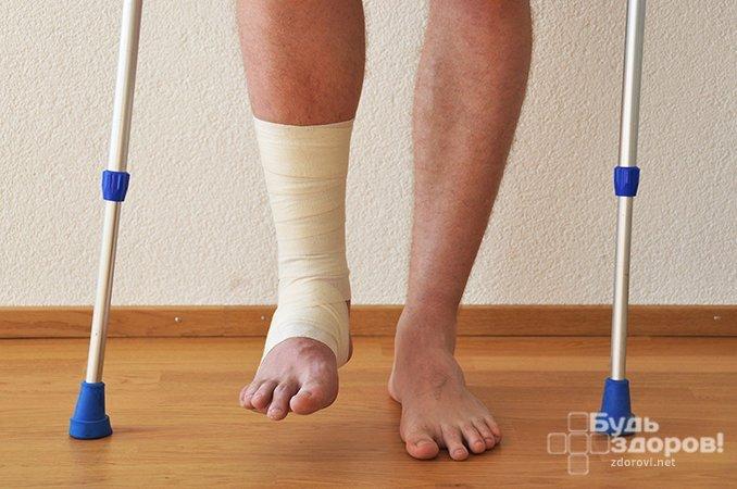 Методы лечения перелома малой берцовой кости