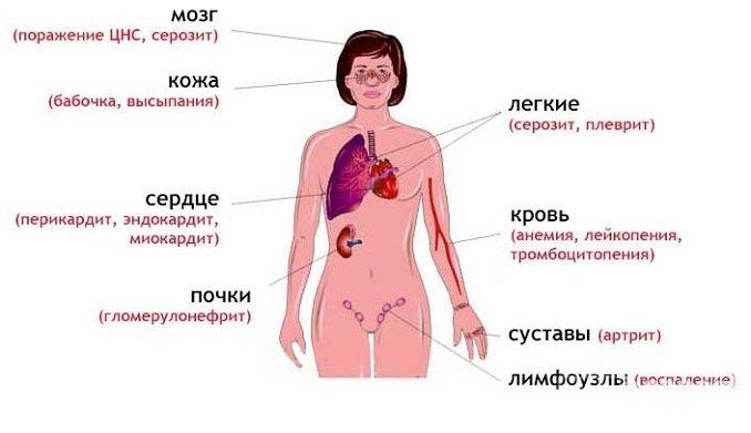 Системная красная волчанка проявляется множеством симптомов, включая характерную сыпь на лице в виде бабочки и поражение суставов