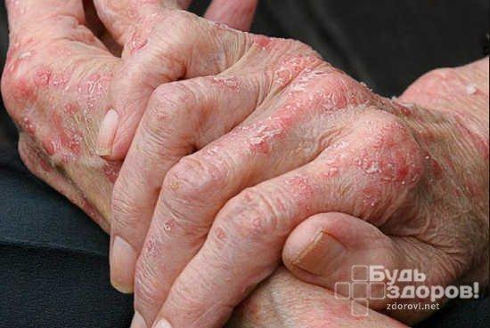 Симптомы экземы (аллергического дерматита)