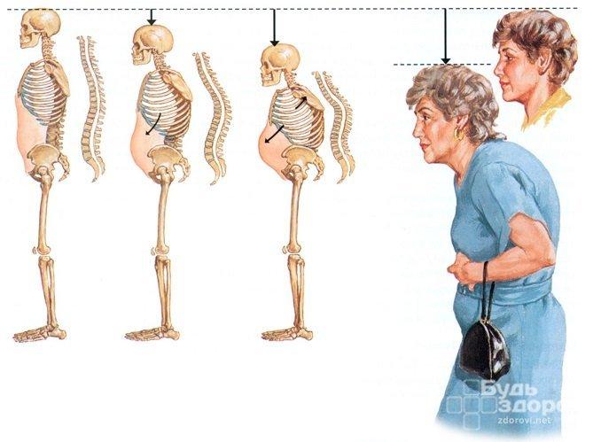 Повышенный уровень кальция отмечается при остеопорозе