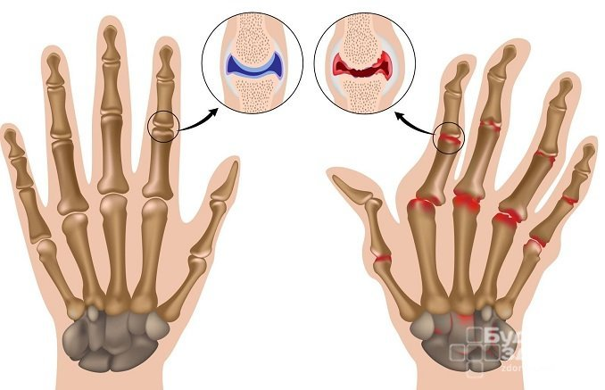 При ревматоидном артрите суставы становятся малоподвижными и деформируются