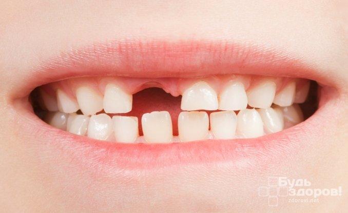 Период смены зубов у детей - с 4 до 13 лет