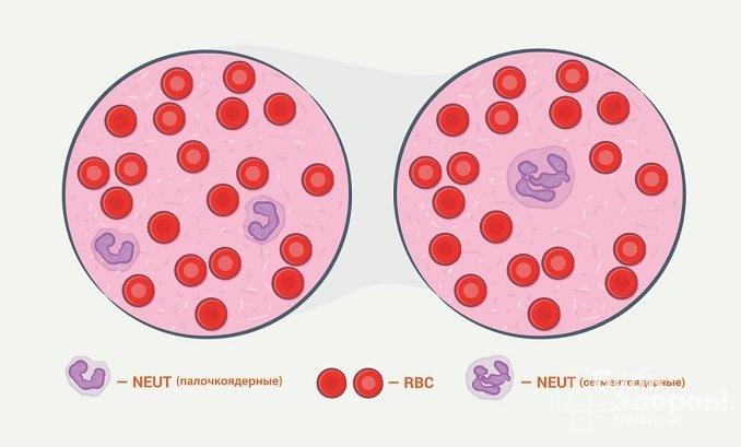 Эритроциты – форменные элементы крови, в анализе крови обозначаются аббревиатурой RBC
