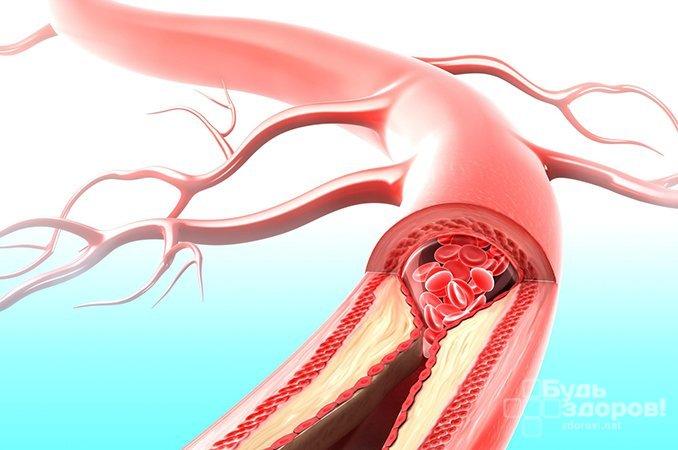 нарушение кровообращения гинекология