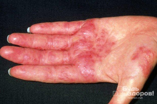 Аллергический дерматит: симптомы и лечение