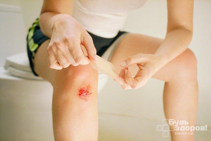 Царапины и другие небольшие кожные повреждения при повышенном сахаре в крови заживают длительно