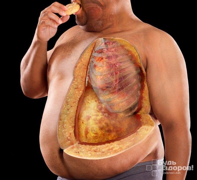 Одним из признаков пониженного уровня дигидротестостерона у мужчин является ожирение по женскому типу