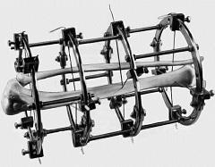 Аппарат илизарова на руке при переломе — Болят суставы