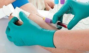 Что может показать анализ крови?