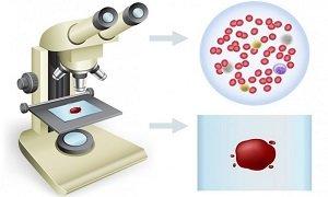 Как расшифровать результаты анализа крови
