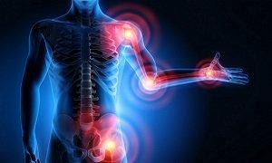 Что такое ревматоидный фактор в биохимическом анализе крови
