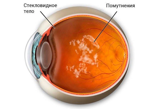 Деструкция стекловидного тела – причины, симптомы, лечение, прогноз