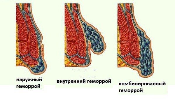Особенности геморроя при беременности симптомы методы лечения