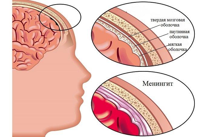 Гнойный менингит у взрослых и детей, симптомы вторичного гнойного менингита, последствия