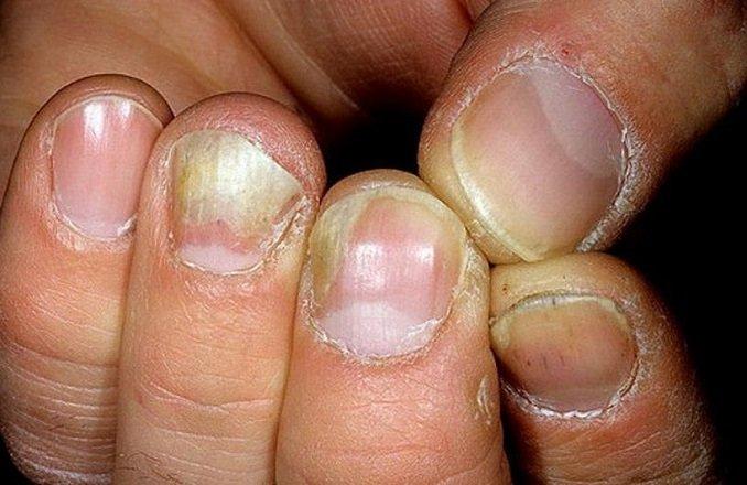 Причины грибка ногтей рук