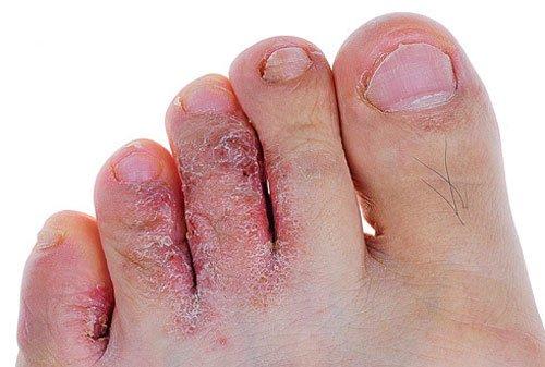 Грибок стопы симптомы и лечение болезни