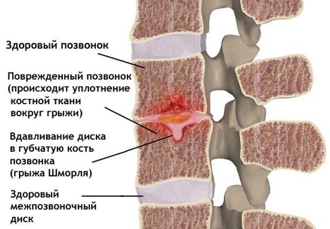 Грыжа Шморля в поясничном отделе позвоночника лечение симптомы причины