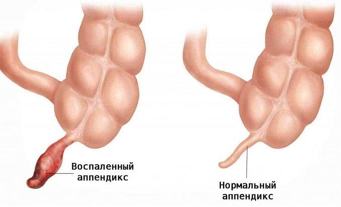 Хронический аппендицит - симптомы, лечение и диагностика