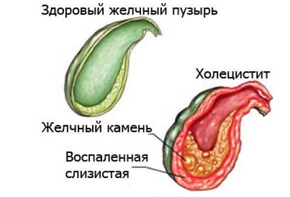 Хронический холецистит в стадии обострения