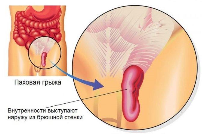 Паховая грыжа у мужчин – симптомы, лечение, операция, удаление