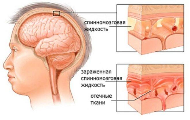 Как проявляется серозный менингит
