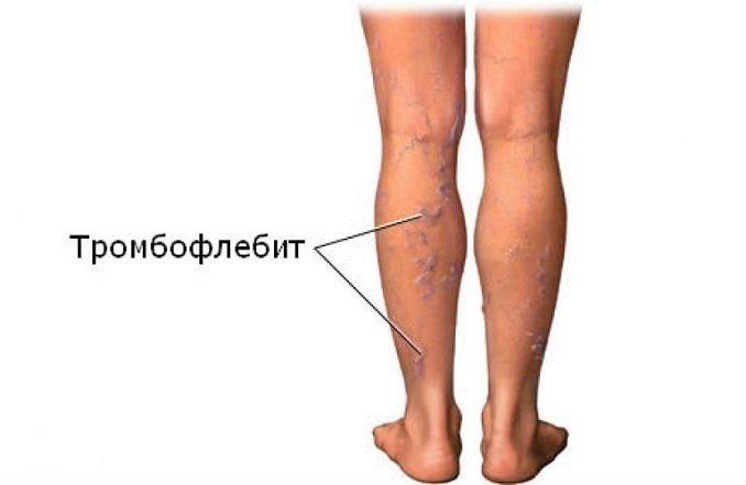 Тромбофлебит, симптомы, профилактика и лечение тромбофлебита