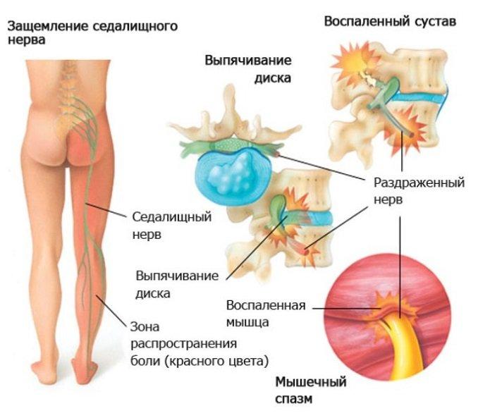 Воспаление седалищного нерва симптомы лечение