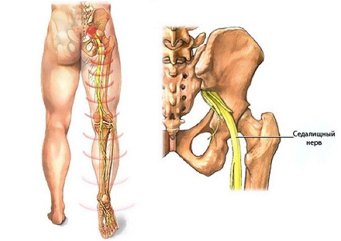 Защемление седалищного нерва – причины, симптомы и лечение седалищного нерва