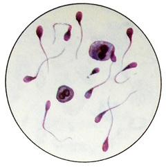 Олиго астено тератозооспермия