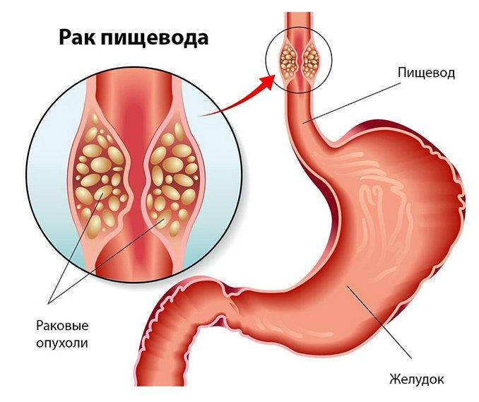 Ахалазия пищевода и ее симптомы