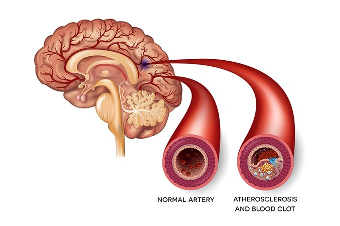 Все об атеросклерозе сосудов головного мозга причины диагностика и лечение