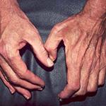 Лечение мышечной атрофии