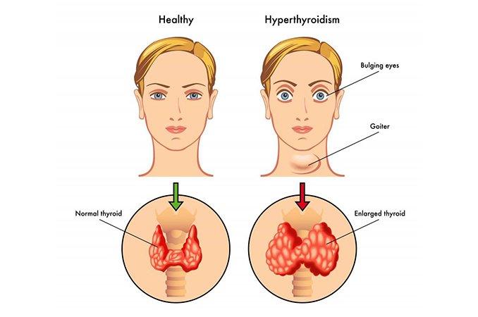 Диффузно неоднородные изменения структуры щитовидной железы