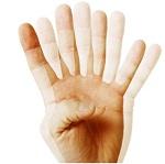 Диплопия (двоение в глазах) - причины и лечение в МГК