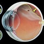 Пигментная дистрофия сетчатки глаза лечение
