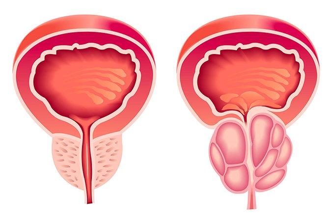 Доброкачественная гиперплазия предстательной железы - лечение