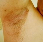 Эритразма лечение народными средствами. Эритразма кожи