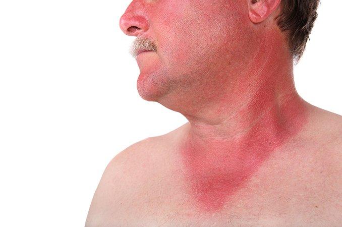 Признаки геморрагической лихорадки