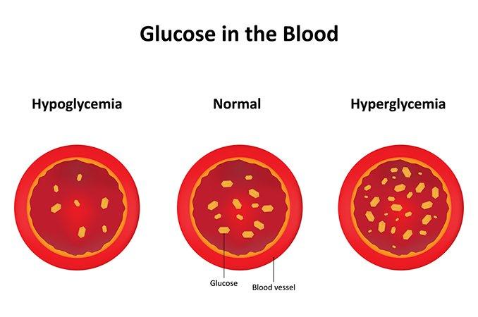 Гипергликемия симптомы причины
