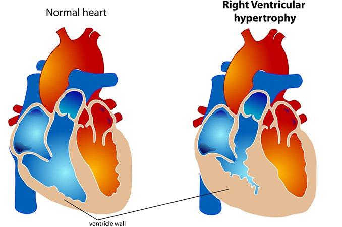 Гиперплазия левого желудочка сердца что это