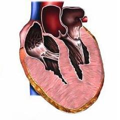 Увеличение правого желудочка сердца что это такое