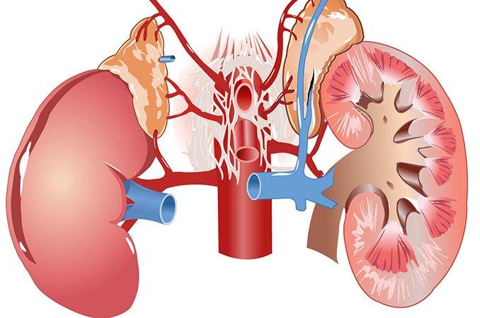 Интерстициальный нефрит — особенности развития и лечения патологии. Как лечить нефрит у мужчин: интерстициальный, хронический, острый