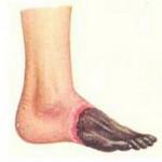 Причины симптомы диагностика и лечение эндартериита
