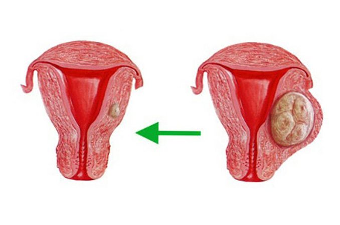 Киста в цервикальном канале шейки матки. Что такое киста эндоцервикса шейки матки и как ее лечить?