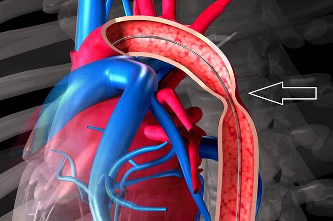 Коарктация аорты - симптомы, лечение, операция